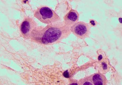 Sekcja Cytologii PTPat